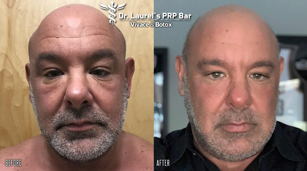 Man after Vivace microneedling and Botox treatment