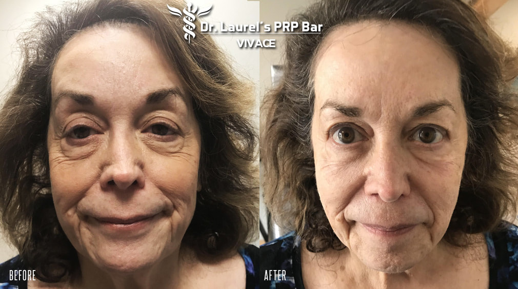 Older woman after one Vivace treatment in Cleveland, OH.