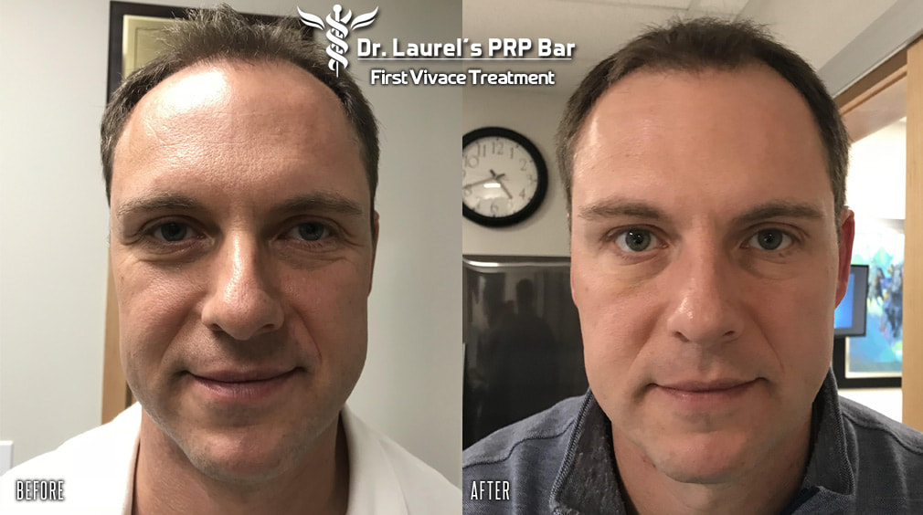 Before & after photos of man after one Vivace microneedling  treatment.