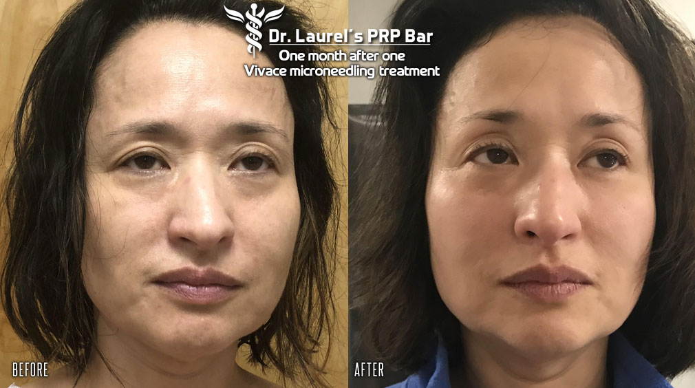 Before & after photos one month after one PRP VIvace Microneedling RF treatment in our Cleveland area office in Beechwood.